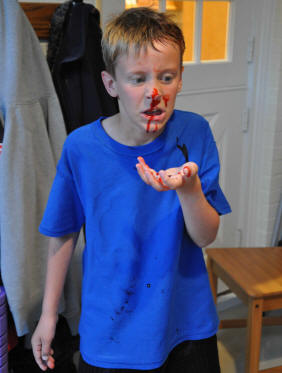 nose bleed first aid for childminders.jpg